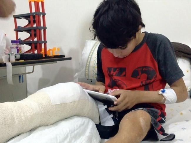 الأمل لطفل لاجئ سوري يعاني من شظايا في ساقه