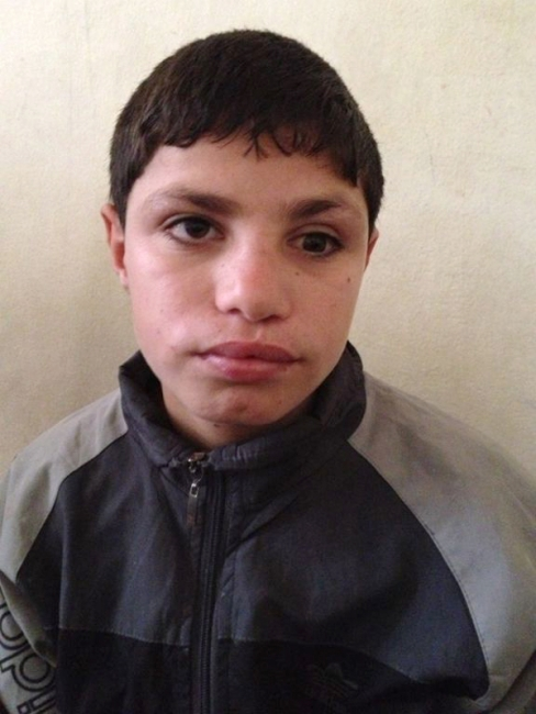 Mohammad Zeion, 14-year-old Suffers Due to Syrian Conflict